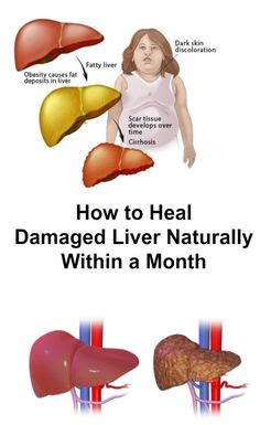 can liver damage be healed picture 5