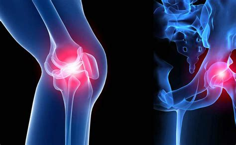 orthopedics picture 3
