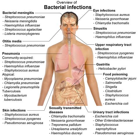 cause of bacterial infection in the stomach picture 5