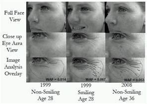 algeroline for wrinkles picture 1