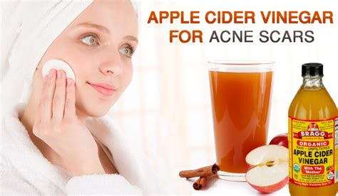 cystic acne how to prevent picture 6