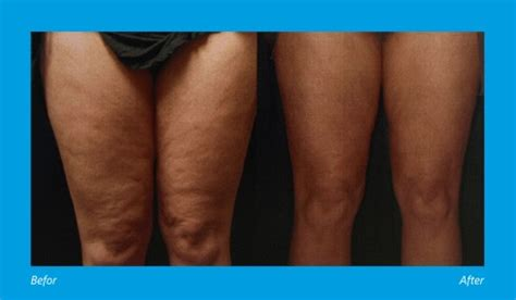 cellulite treatments picture 7