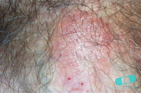 dry skin around vaginal area picture 21