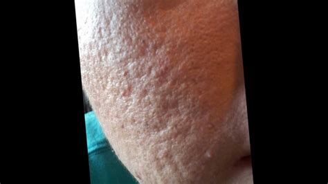 where i can found acnevir acne & redness picture 12