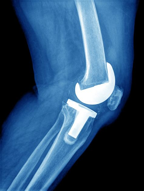 medal carpal joint picture 3