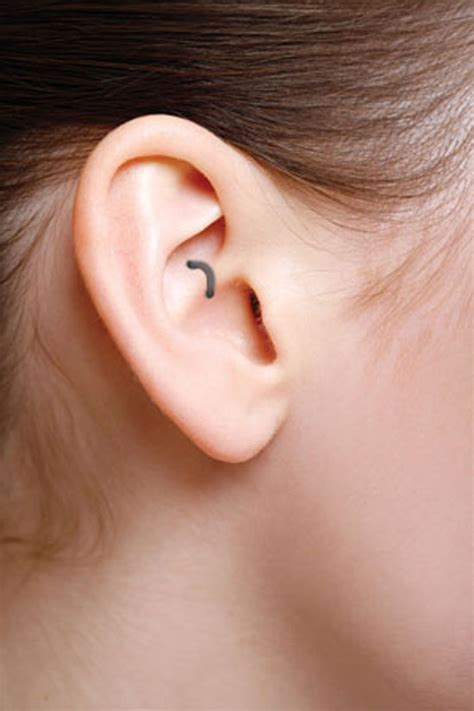 locations of weight loss ear staple picture 3