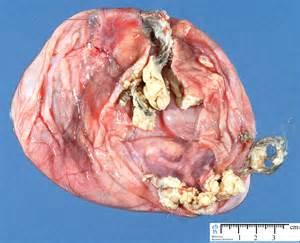 wazeefa for tumer in breast picture 11