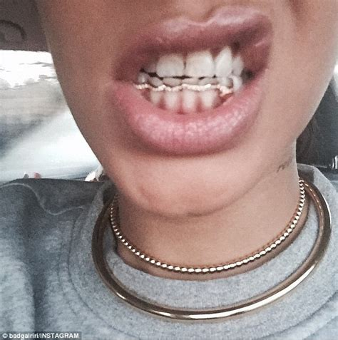 free grill teeth online picture 22
