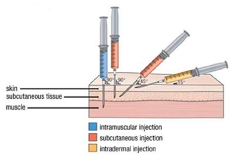 hgh injection site picture 3