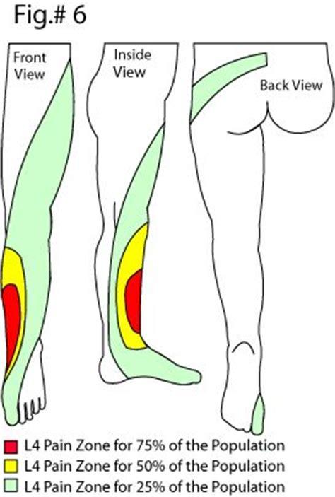 pain relief for sciatica picture 11