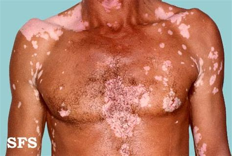 what causes the skin to tur white when picture 15