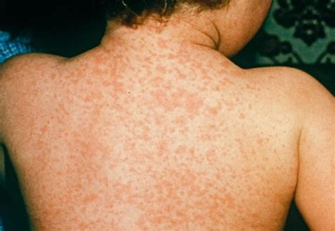 does my infant have acne or hives picture 12