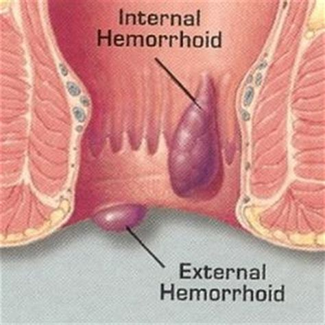 internal hemorrhoids picture 2