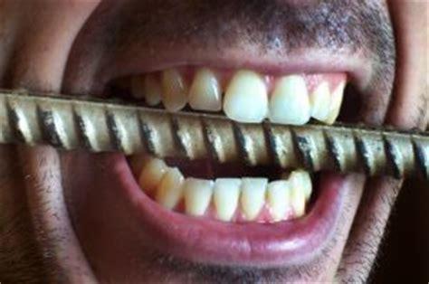dry mouth teeth hurting metal taste picture 2