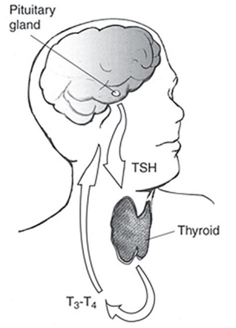 thyroid isthmus thickening picture 7