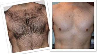 body hair removal for men picture 11