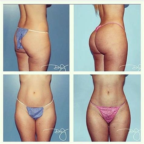 injections in stomach for weight loss picture 6