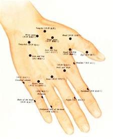 acupuncture pain relief picture 6