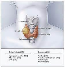 aspiration of a nodule in the thyroid gland picture 13