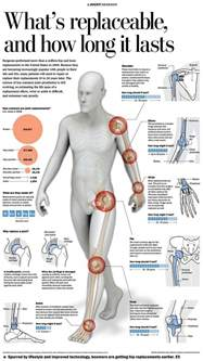 chronic joint pain picture 11
