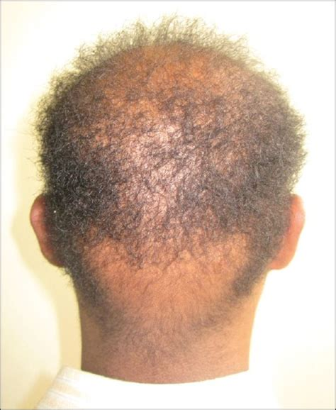 wooly hair syndrome picture 9