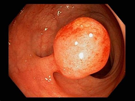 Cancerous polop in colon picture 1