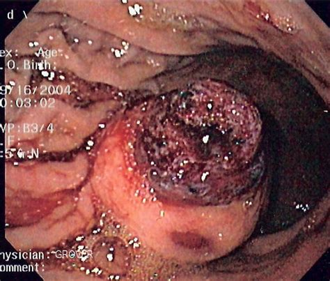 gastrointestinal tumors picture 2