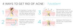 do antibiotics help fight acne picture 1