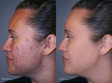sing the right antibiotic acne picture 10