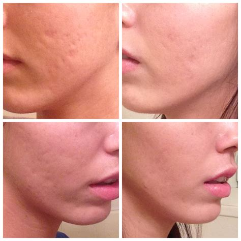 acne scars message board picture 14
