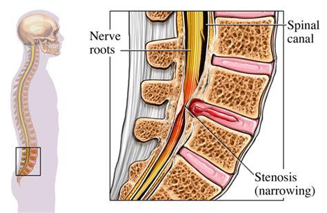epidural pain relief picture 5