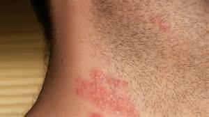 herpes on skin picture 3