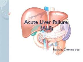 acute liver failure and tylenol picture 14