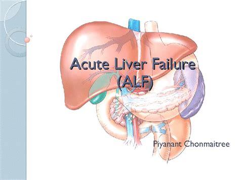 fulminant liver failure picture 15