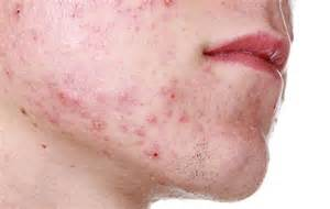 acne high testosterone levels picture 2