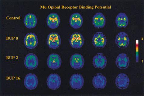 how to detox brain receptors picture 10