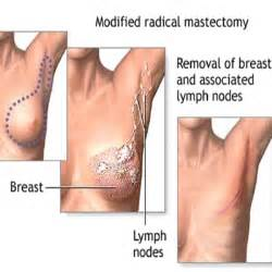 breast reconstruction with tissue expansion post op care picture 3