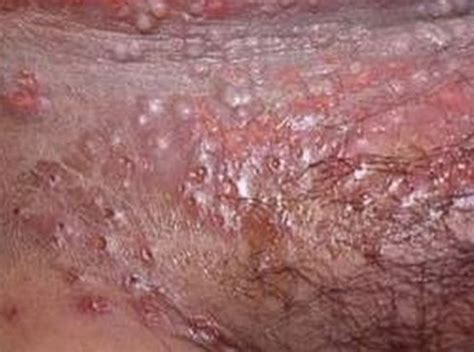 what can cause ps on the vaginal area picture 7