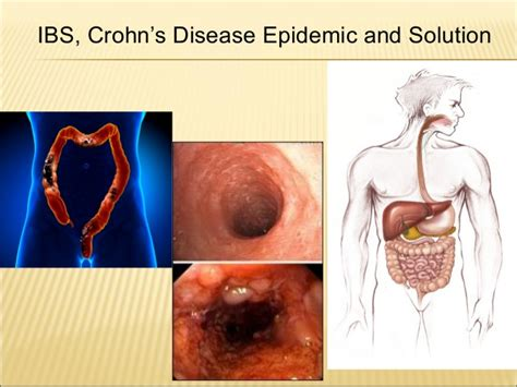ibs fever picture 10