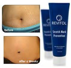 get rid of stretch marks without strechmark lotion picture 9