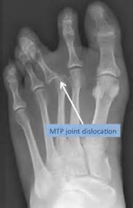 capsulitis fifth toe joint symptoms picture 9