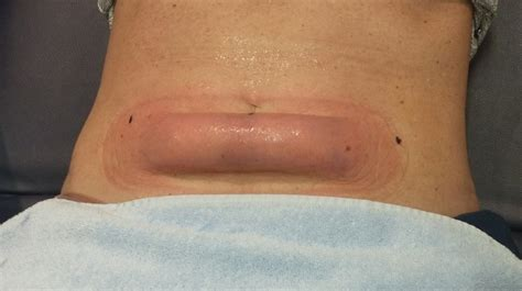 cellulite treatment new jersey picture 13