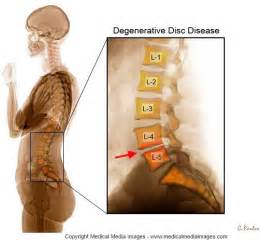 degenerative joint disease of cervical spine picture 2