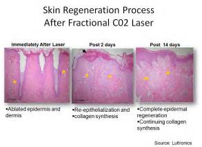 co2 laser acne scar treatment picture 5