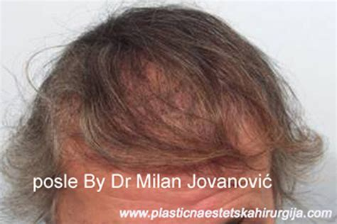 cosmetic surgery hair picture 11