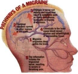 migrane medicine prescription picture 2