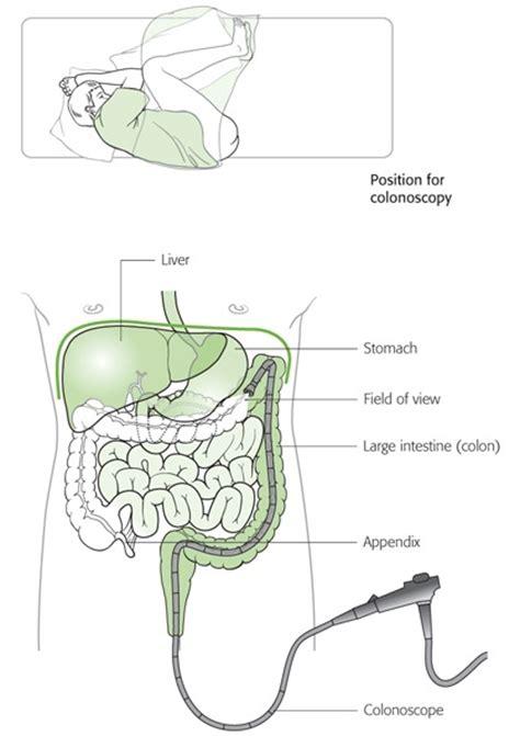 colon biopsy picture 13