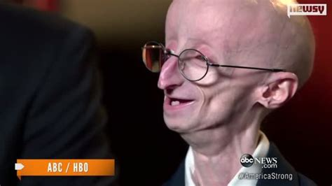 accelerated aging progeria syndrome picture 7