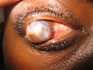 yeast infection in eyes picture 13