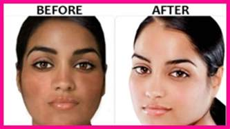 where can i buy revitol skin lightening cream picture 12